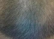 发际线高可不可以做植发手术 这几种情况千万不要做植发