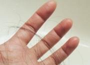 想改善脱发先从了解做起 分享有效预防掉发的五项小秘诀