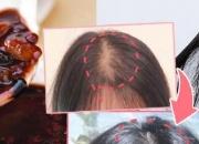 防脱发食疗+中医头皮穴位按摩方法推荐 有效改善脱发问题让头发生长更健康