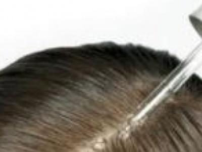头皮健康要怎么知道?15秒�^皮健诊三步骤