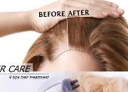 头皮出油、干痒、头皮屑狂掉?4招护理秘诀,养好头皮才有秀发!