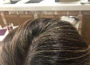 压力大脱发还是季节性脱发?解析常见掉发类型,摆脱秃头女孩从日常生活下手