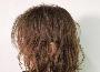 头皮痒是什么原因 这十种情况会让你的头皮越来越痒