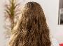 植头发有什么后遗症 植发的后遗症和预防措施