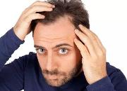 m型发际线脱发怎么办 掉头发秃头的解决方法